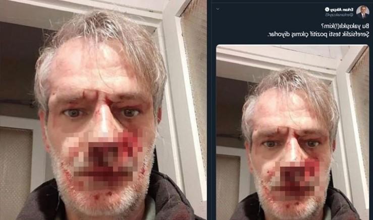 Böyle bir ülkede yaşıyoruz MHP'li vekil darp edilen yazarın fotoğrafını paylaştı, hakaret etti