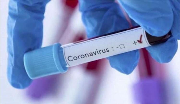 Hollanda Corenavirüsten ölen Türk sayısı 3 çıktı