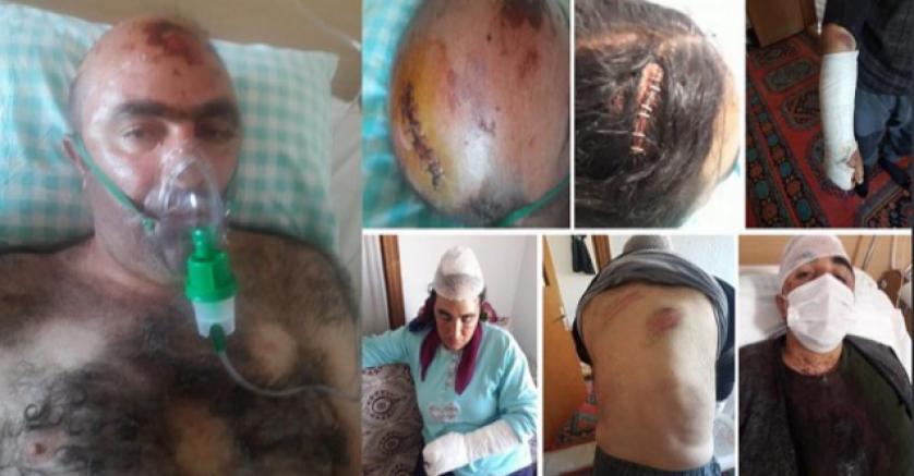 Kürt Aileye Konya'da faşist saldırı: Biz ülkücüyüz, sizi burada yaşatmayacağız